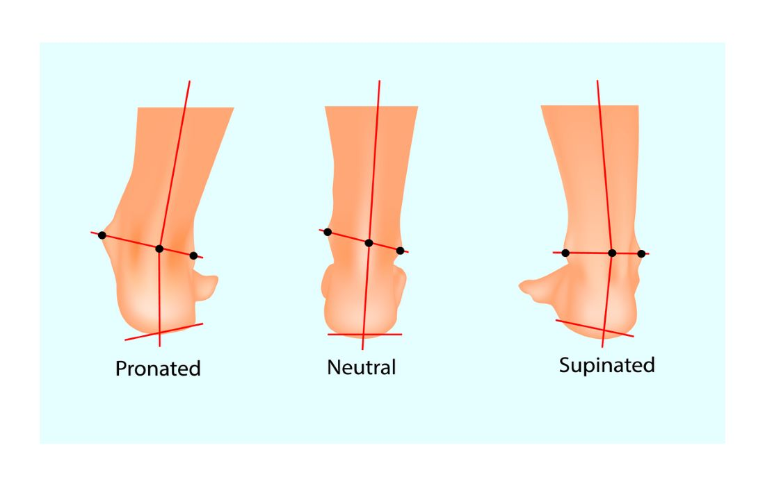 three feet showing pronation neutral and supination