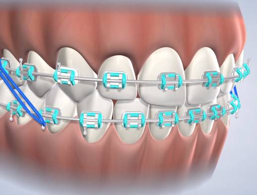 Learn about Braces at Nalchajian Orthodontics