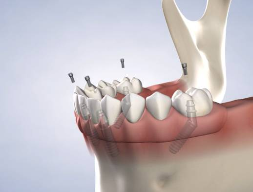 Learn about full-arch restoration at Beech & Reid Oral & Dental Implant Surgery