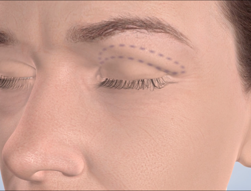 Learn about blepharoplasty at Canyon Oral & Facial Surgery