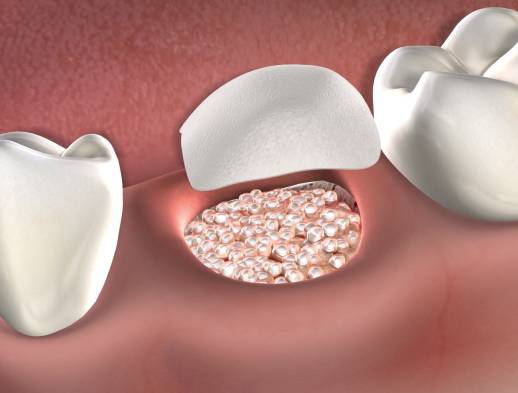 Learn about bone grafting at Beech & Reid Oral & Dental Implant Surgery