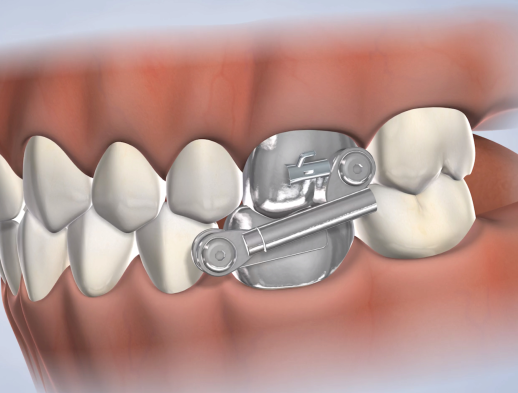 Learn about bite correction at Nalchajian Orthodontics