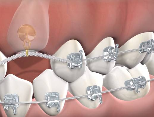 Learn about impacted canines treatment at Canyon Oral & Facial Surgery Dental Implant Experts