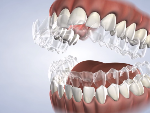 Learn about Invisalign® in Fresno, CA