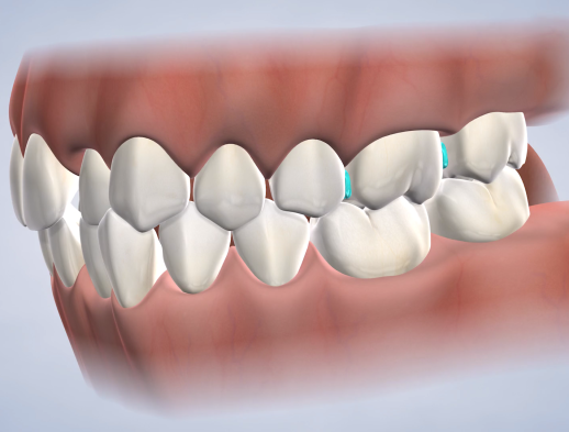 Learn about separators at Nalchajian Orthodontics