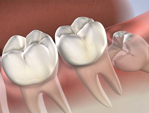 wisdom teeth in roseville, ca