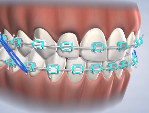 Learn about Early Orthodontic Treatment at Warren Orthodontics at Warren Orthodontics