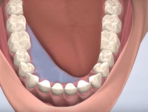 ilustración de patologia oral