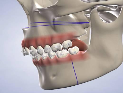 ilustración de cirugia mandibular