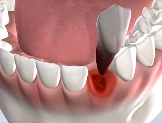 ilustración de extracción dental