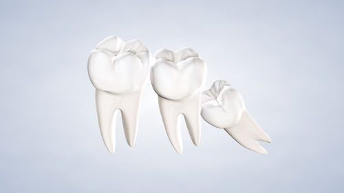 Post Operative Instructions Wisdom Teeth Removal