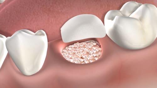 Bone Grafting Post Operative Instructions At Amarillo Oral Maxillofacial Surgery