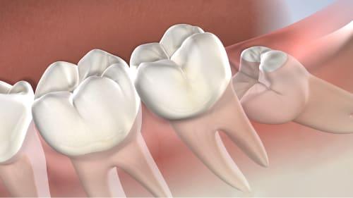 Wisdom Teeth Removal Post Operative Instructions At Amarillo Oral Maxillofacial Surgery