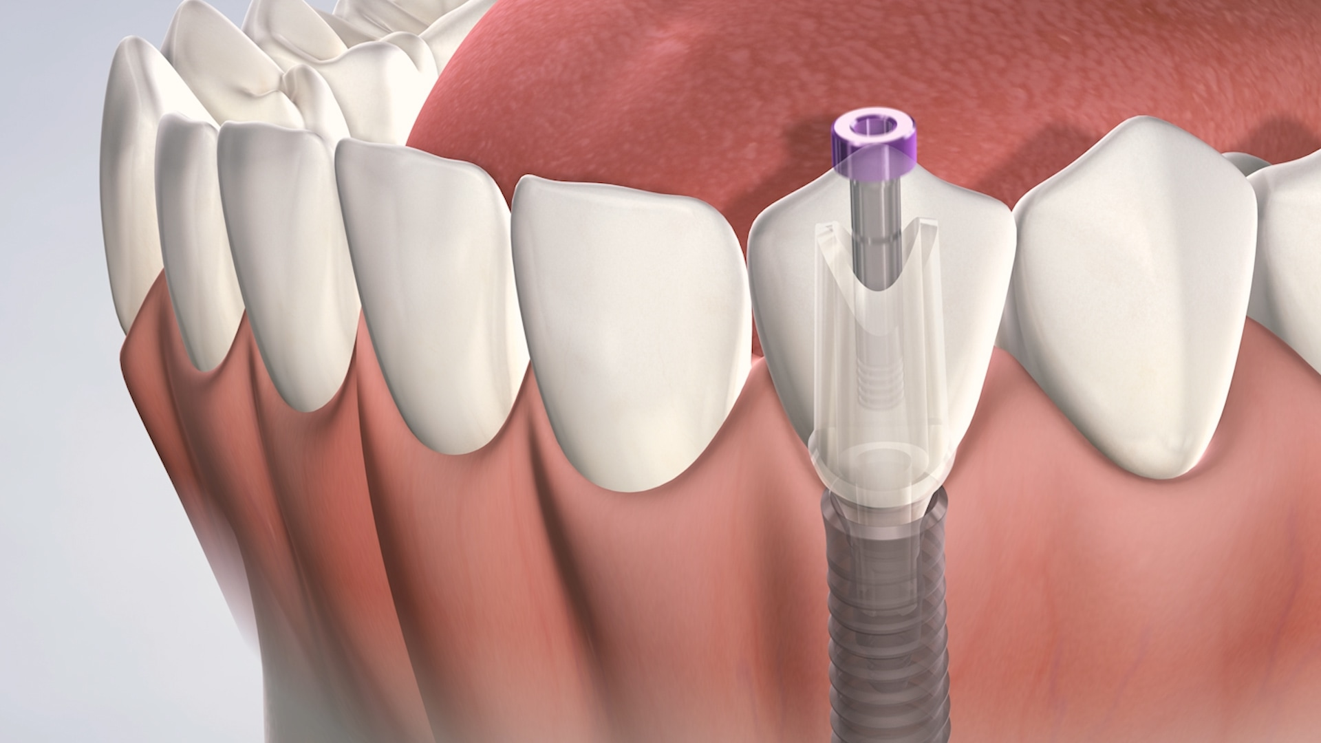 This image shows how a single dental implant is placed