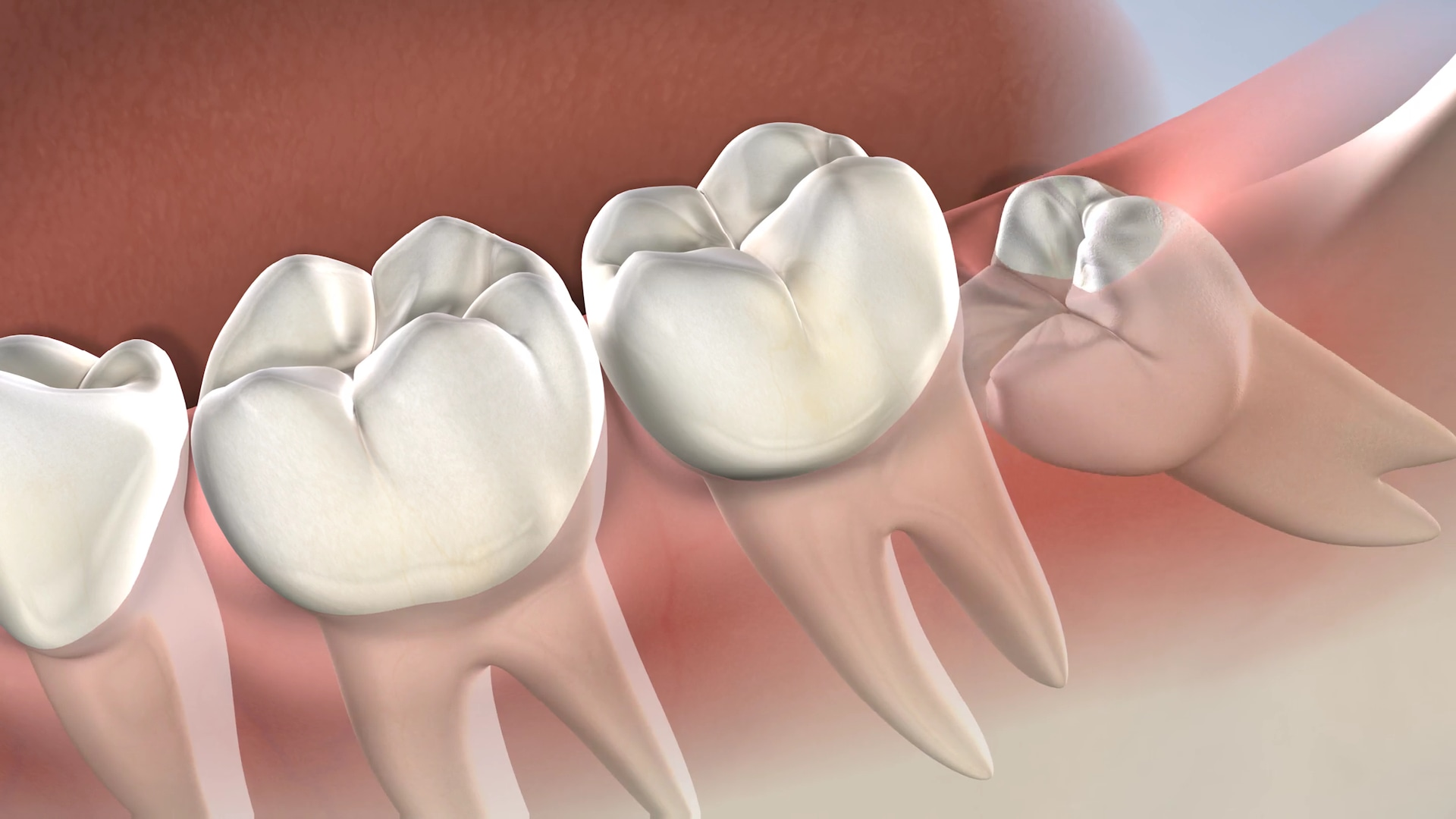 Post Operative Instructions Following Wisdom Tooth Extractions At Oral Surgery Specialists Of Oklahoma
