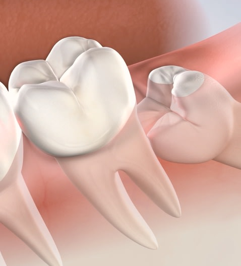 Impacted wisdom tooth extractions in Oklahoma City, OK