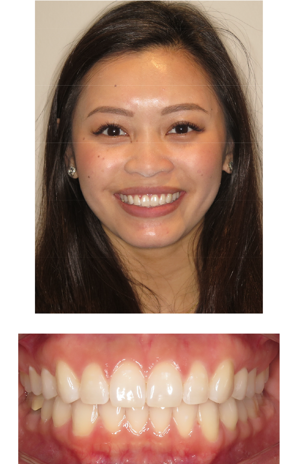 Invisalign® Slected Patient After