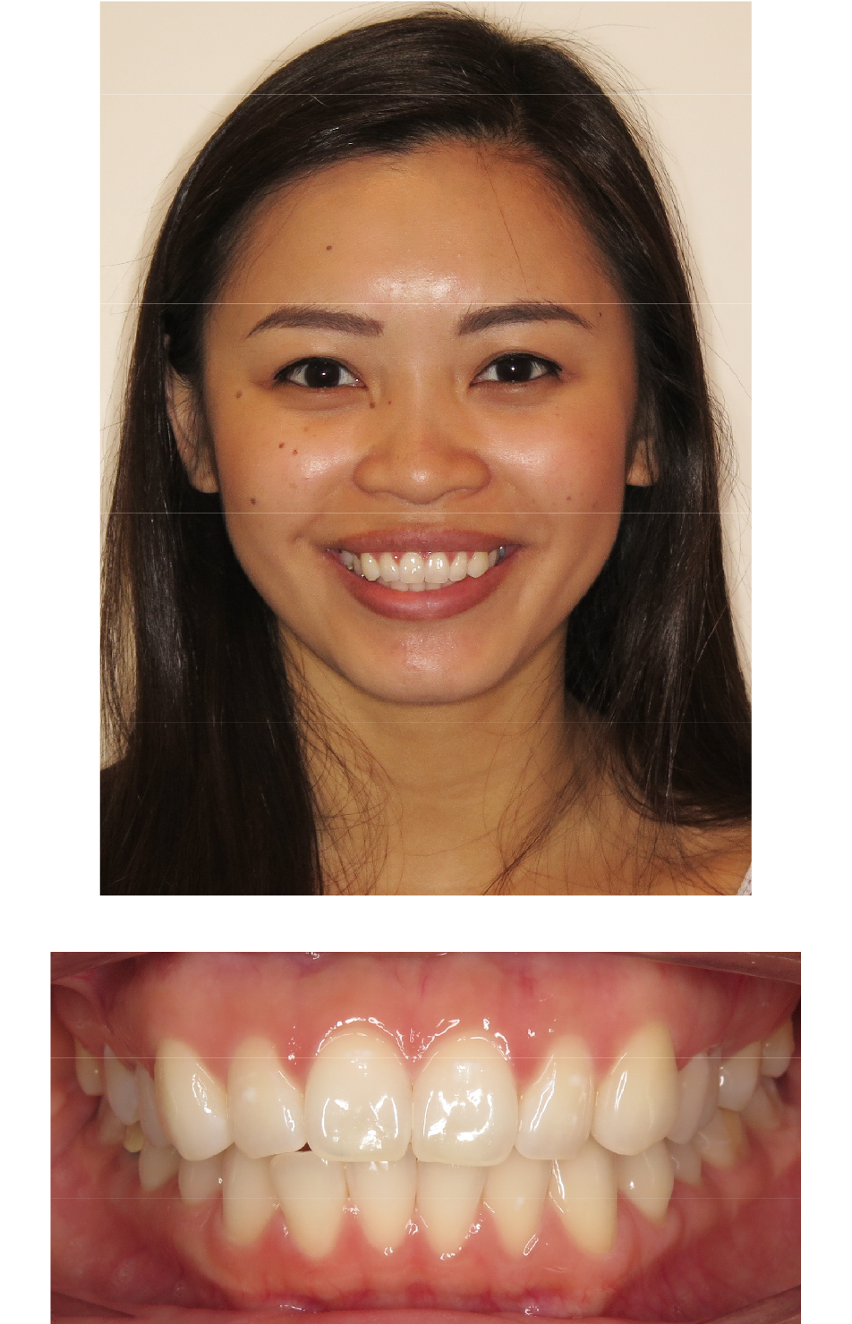 Invisalign® Slected Patient Before