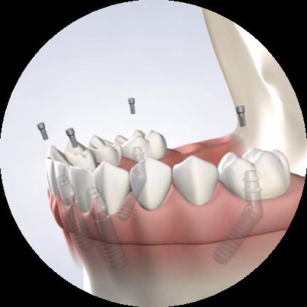 Oral surgery in San Diego, CA