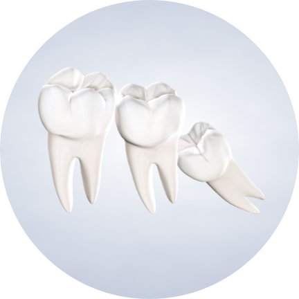 Wisdom Tooth Removal in San Diego, CA