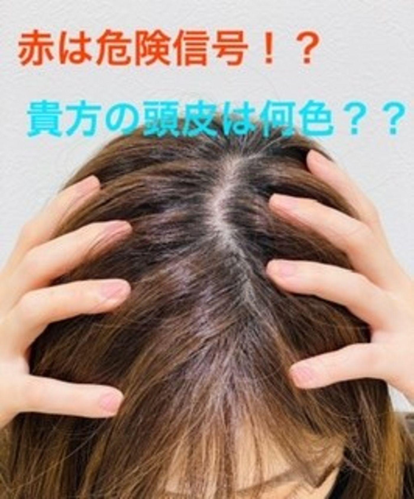 頭皮の色別危険信号