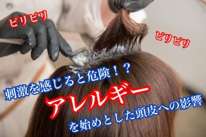 アレルギー!?カラーが沁みる、かゆい人は要注意!頭皮に与える影響と対策
