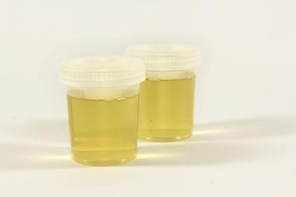 7 signes à surveiller pour éviter la déshydratation