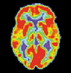 Neuromarketing|Neuromarketing