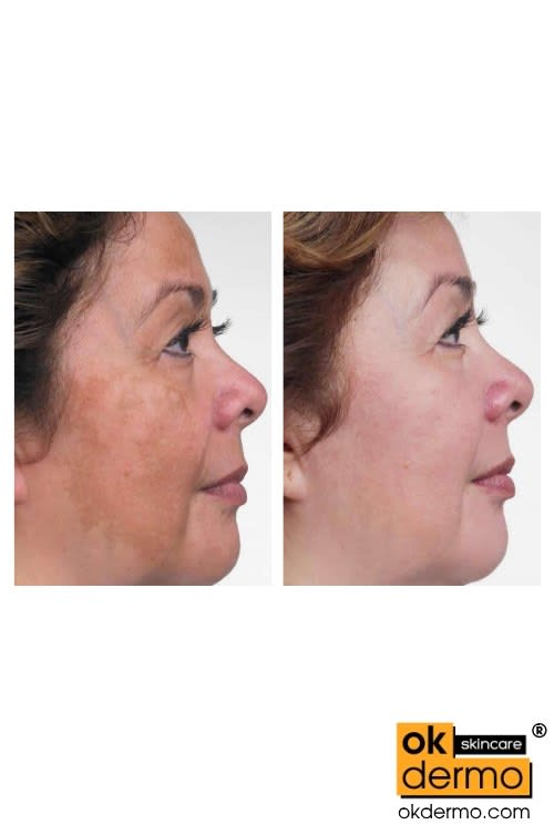 Hydroquinone cream before and after