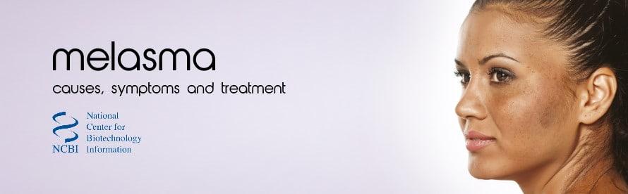 Topical Treatment Of Melasma: Causes. Symptoms. Treatment