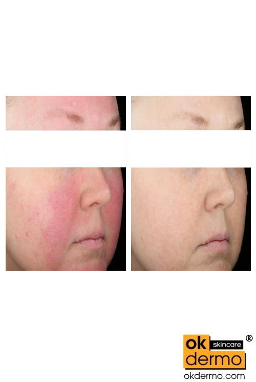Mirvaso alternative Brimonidine before after Rosacea treatment mirvaso alternative brimonidine gel over the counter
