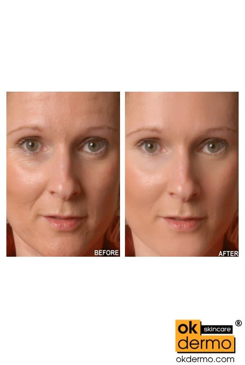 Vitamin C Serum Before After