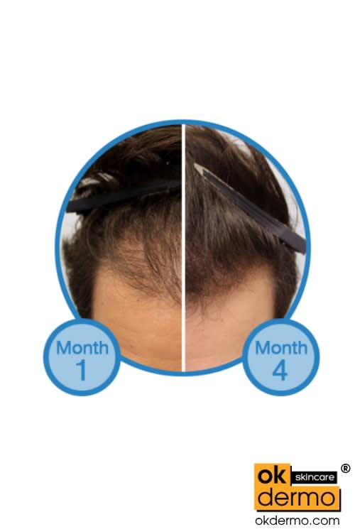 Minoxidil 10 Before After Treatment Hair Regrowth Serum