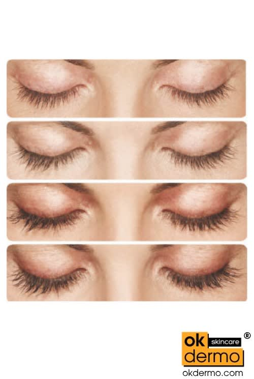 What is the right way to use Careprost for eyelash growth?