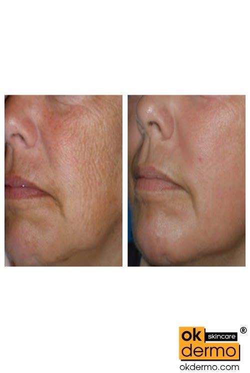 Botox Like BoNT-L Peptide Cream Boxtlak-BL® 20g