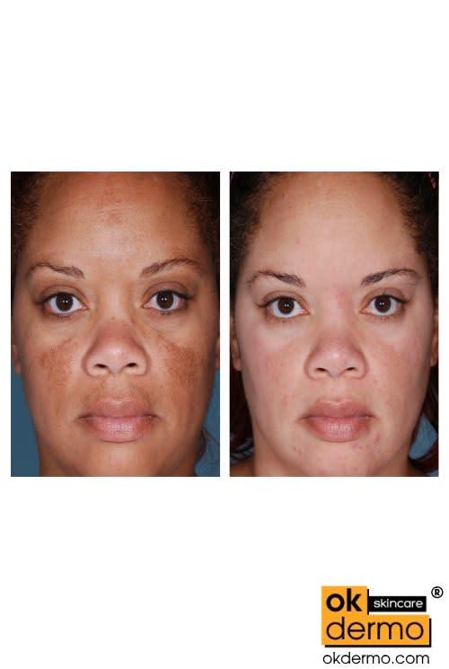Hydroquinone 4% USP Skin Lightening Cream Melalite Forte® 30g