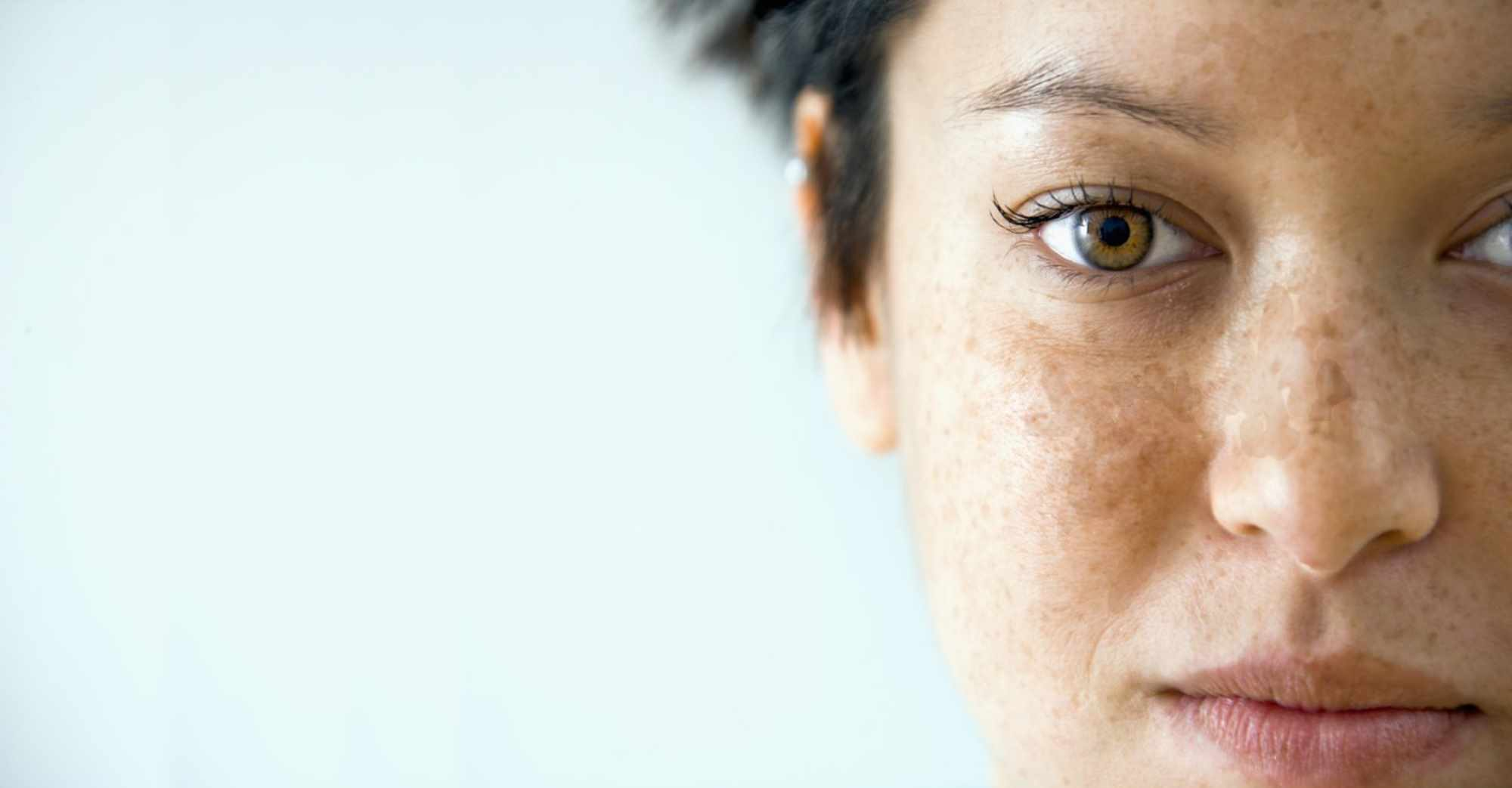 Skin lightening hyperpigmentation dark spots discoloration chloasma freckles