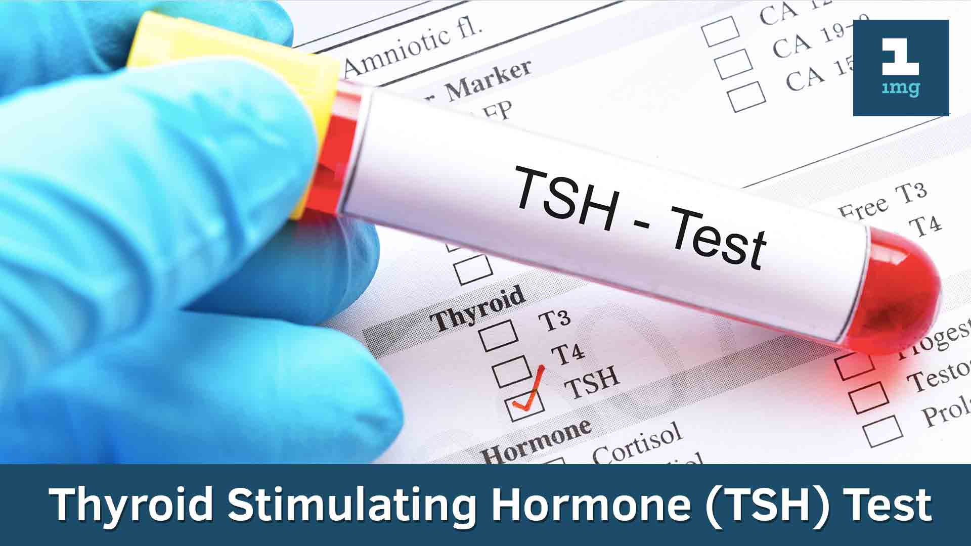 Thyroid Stimulating Hormone