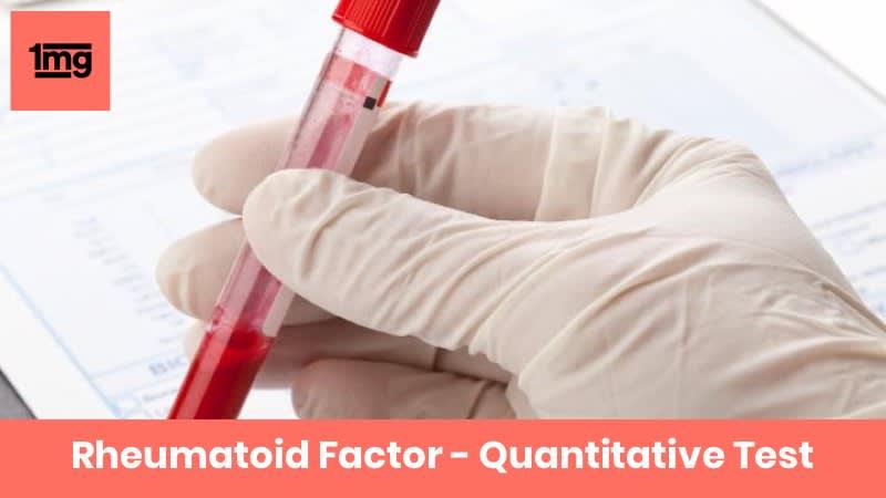 Rheumatoid Factor - Quantitative