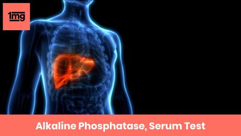 Alkaline Phosphatase, Serum