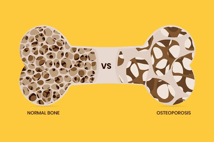 The Truth About Osteoporosis You Should Know for Healthy Bones