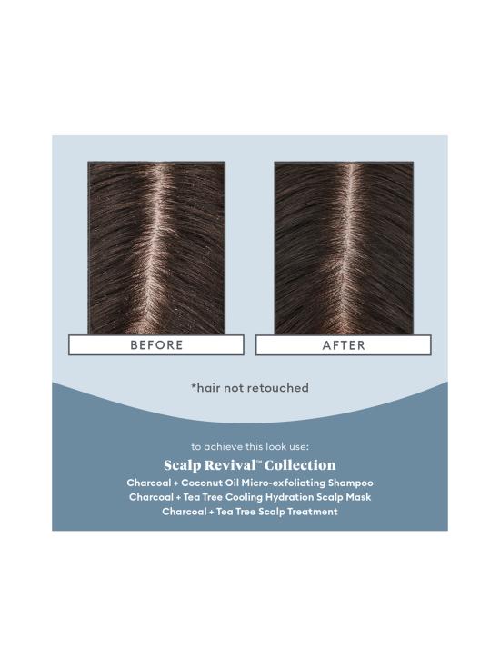 Briogeo - Briogeo Scalp Revival™ Scalp Soothing Solutions Set - 1   Stockmann - photo 2
