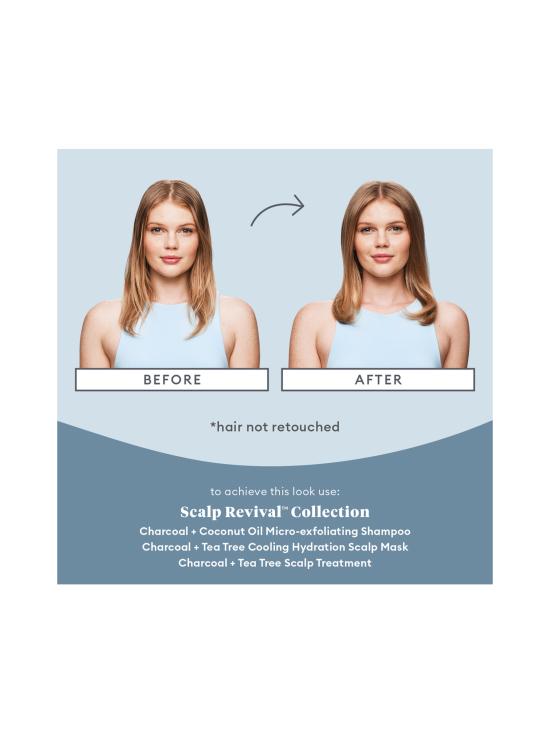 Briogeo - Briogeo Scalp Revival™ Scalp Soothing Solutions Set - 1   Stockmann - photo 3