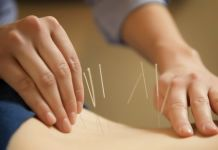 How Effective is Acupuncture for Weight Loss?