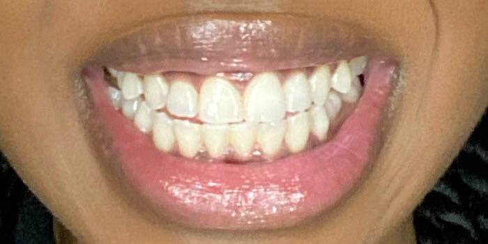 After Crest Whitening Emulsions