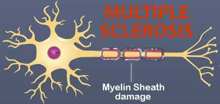 Multiple Sclerosis due to myelin sheath damage