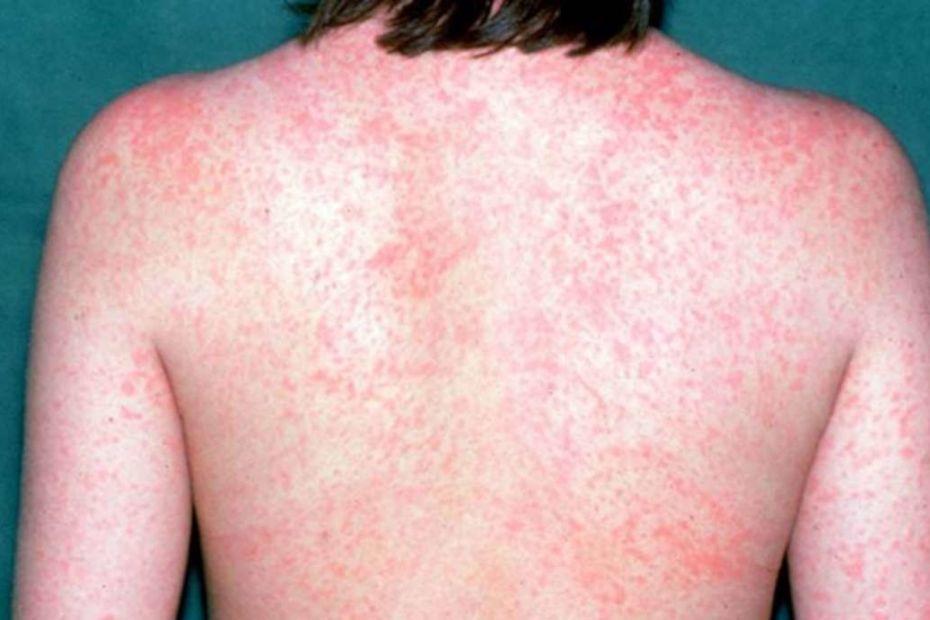SARAMPO: doença infecciosa extremamente contagiosa !!! - destacada