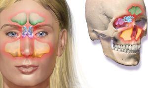 A sinusite é uma doença inflamatória do tecido de revestimento dos ossos da face (seios da face)