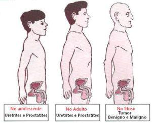 As principais doenças que acometem a próstata