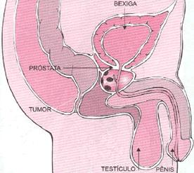 Tumor maligno na próstata